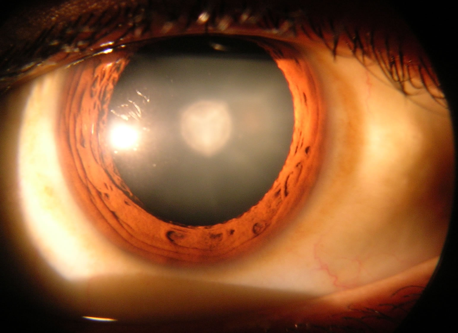 A cataract in a human eye